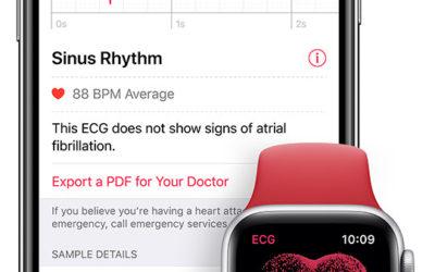 L'app ECG et les fonctionnalités de notification d'arythmie sont disponibles sur l'Apple Watch